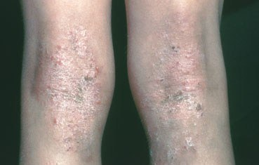 Atopic Dermatitis Knees